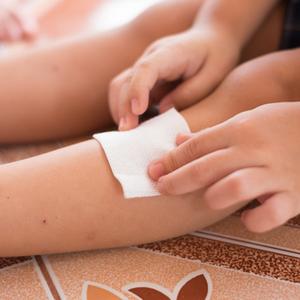 子どもの肌のSOS!「皮膚トラブル」の原因とホームケア法