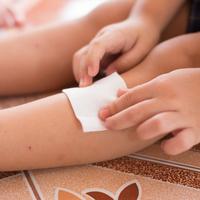 小朋友肌膚的SOS~「皮膚問題」產生的原因及在家處置的方法