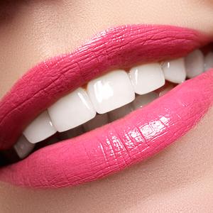 歯医者さんがこっそり教えます!白い歯をキープする簡単な方法とは?